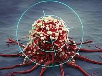 Сенсация: ученые создали вирус, который убивает любые раковые клетки