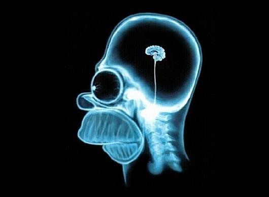 Мозг — структура странная…