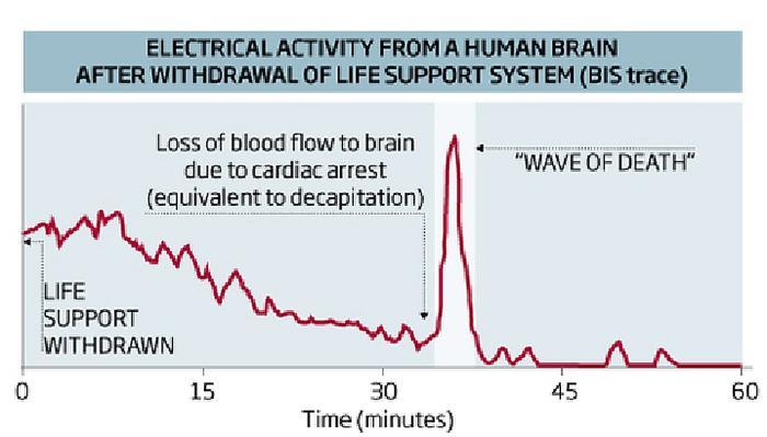 Всплеск мозговой активности возникает примерно через 3 минуты после остановки сердца.