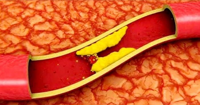 Особенности диеты при атеросклерозе сосудов головного мозга