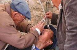 Индийская стоматология без боли (фото)