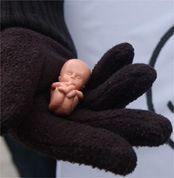 Вице-спикер Госдумы Сергей Бабурин предлагает ввести частичный запрет абортов