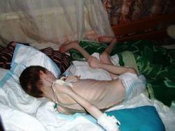 В Кемерово от голода умерли 27 воспитанников интерната