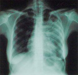 В России эпидемия туберкулеза. Защитить себя еще не поздно