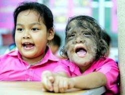 В Бангкоке живет девочка-волчонок (фото)