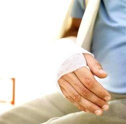 Переломы будут лечить без гипса
