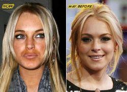 Линдсей Лохан (Lindsay Lohan) увеличила губы (фото)