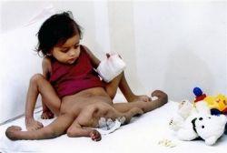 Девочке, родившейся с четырьмя руками и ногами, сделают операцию (фото)