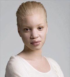 Черная женщина с белой кожей