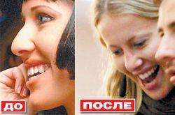 Ксения Собчак решила исправить свою внешность