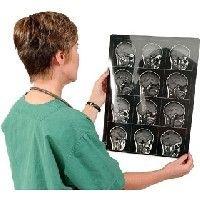Ученые выяснили, что у человека существует два вида памяти
