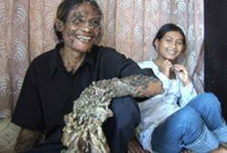 Редкий вирус превратил индонезийца в человека-дерево