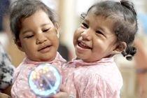 В США разделили сиамских близнецов из Коста-Рики