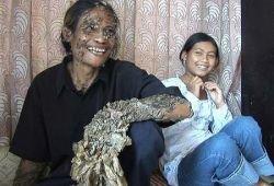 Бородавки, которые несут смерть (фото)