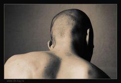 Химиотерапия всегда приводит к выпадению волос
