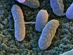 Голодные бактерии лишаются устойчивости к антибиотикам