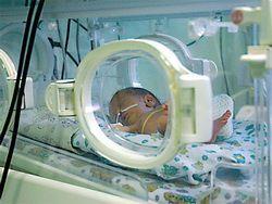 Крошечные детки: как выхаживают новорожденных весом 500 граммов