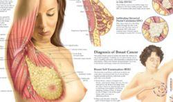 Посменный график работы ведет к раку