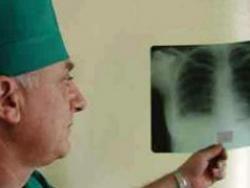 Каждый второй больной туберкулезом в Москве - бомж или мигрант