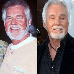 Знаменитости до и после пластической операции (фото)