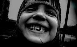 Японские ученые вырастили человеческую кость из стволовых клеток молочных зубов