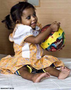 Индийскую девочку, которой удалили лишние конечности, показали журналистам (видео)