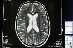 Как наш мозг воспринимает веру?
