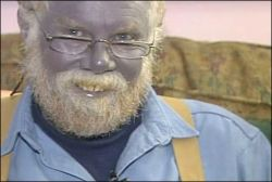 Человек с синей кожей (видео)
