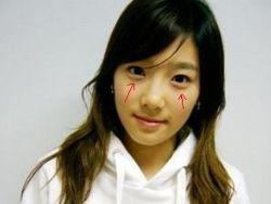 Мешки под глазами азиаты