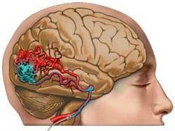 Новость на Newsland: Ненаследственная эпилепсия диагностируется