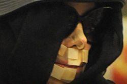Секрет пластыря на лице Майкла Джексона раскрыт