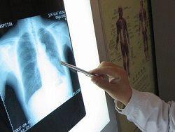 ВОЗ: миру угрожает волна онкологических заболеваний