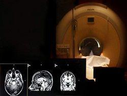 Ученые нашли доступ к памяти человека