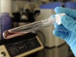 Новость на Newsland: Вакцина от рака - прорыв в науке или громкое заявление?