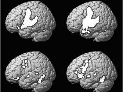 Доказано замедление старения мозга при изучении языков