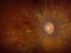 Генотерапия на время исцеляет заболевания сетчатки глаза