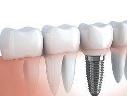 Созданы антибактериальные зубные импланты