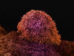 Новость на Newsland: Как рак выбирает место для метастаза