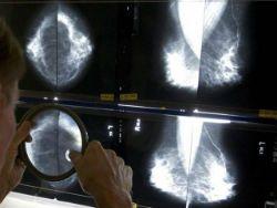 Сладкоежкам грозит рак груди и лёгких