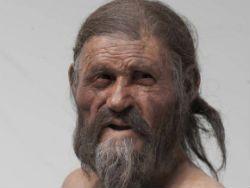Гастрит - более древняя болезнь, чем думали учёные