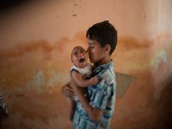Бразилия в ужасе. В стране эпидемия микроцефалии?