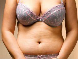 По мнению учёных ожирение не связано с перееданием