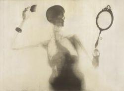 Человек под рентгеном (фото)