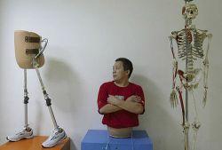 Китаец, разрезанный пополам 13 лет назад, учится ходить (фото)