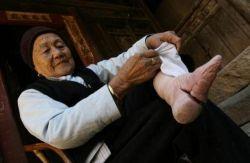 Китайской традиции деформации ступней - 1000 лет