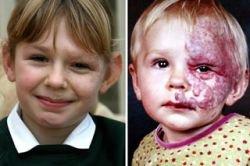 7-летнюю девочку Бекки Проссер избавили от родимого пятна в пол-лица