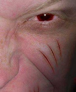Британские ученые избавят людей от шрамов