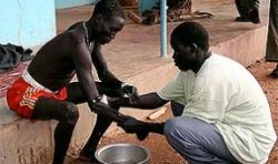 Вспышка холеры в Демократической Республике Конго уже унесла 59 человек