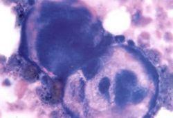Найден ген, которые подавляет развитие рака кожи