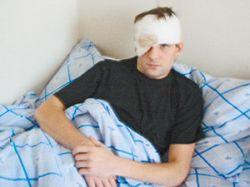 Сочинец выжил после того, как в его голове разорвалась петарда